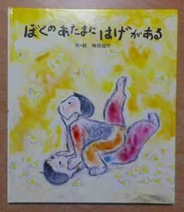 ぼくのあたまにはげがある 梅田俊作 ポプラ社