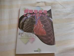【古本・送料無料】循環器疾患ビジュアルブック